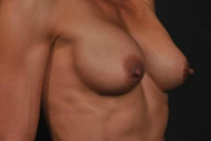 Case #1264 – Breast Augmentation