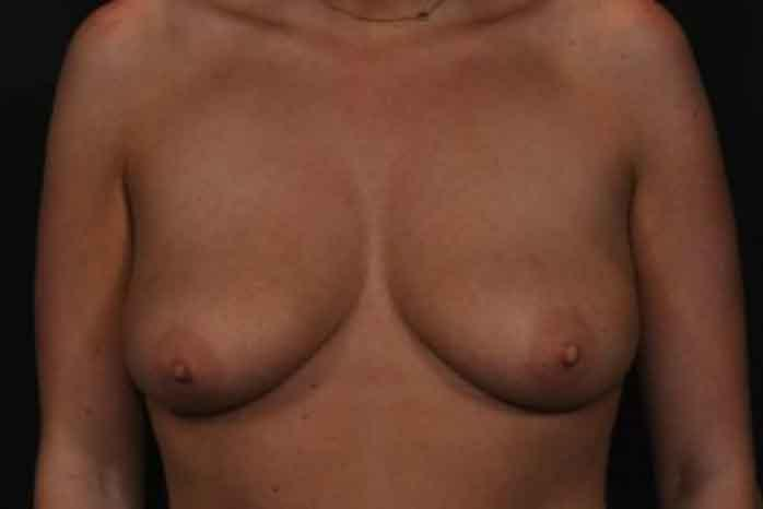 Case #1275 – Breast Augmentation