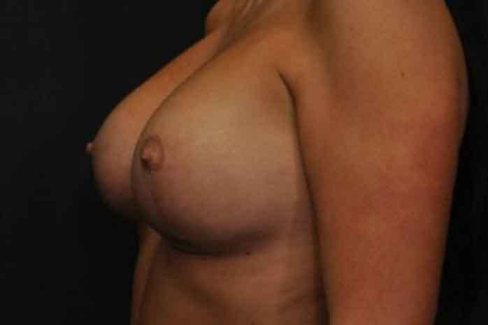 Case #1275 – Breast Augmentation