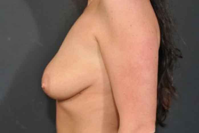 Case #1275 – Breast Lift