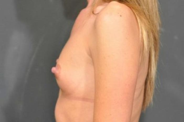Case #1287 – Breast Augmentation