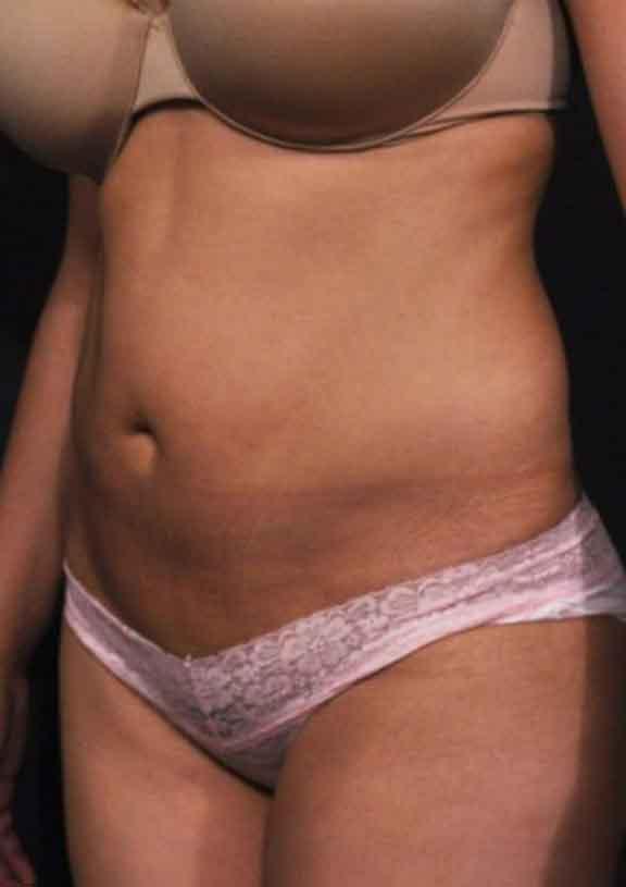 Case#128 – Liposuction