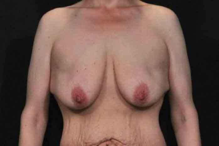 Case #1299 – Breast Lift