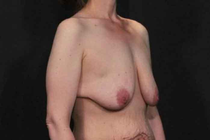 Case #1299 – Breast Lift