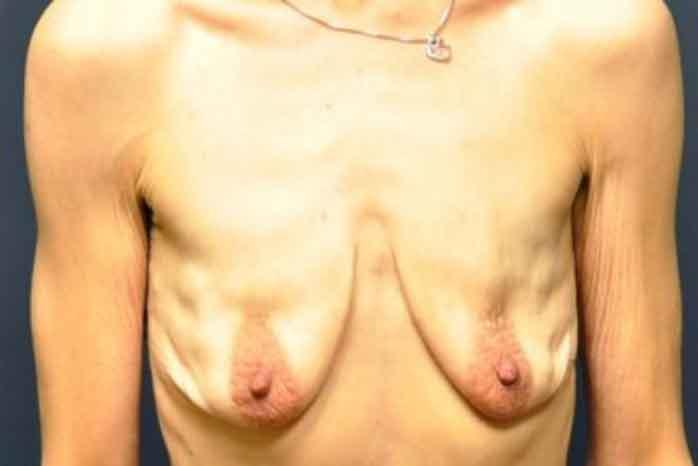 Case #1313 – Breast Lift