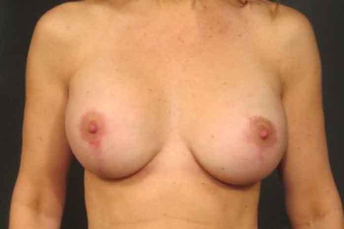 Case #1342 – Breast Augmentation