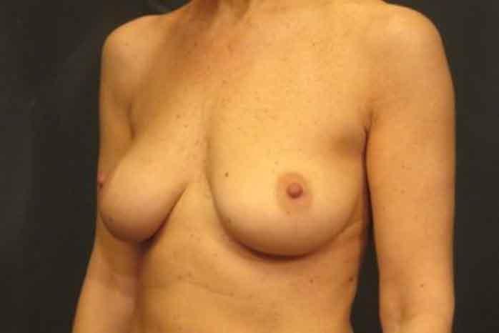 Case #1342 – Breast Lift