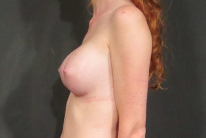 Case #1356 – Breast Augmentation