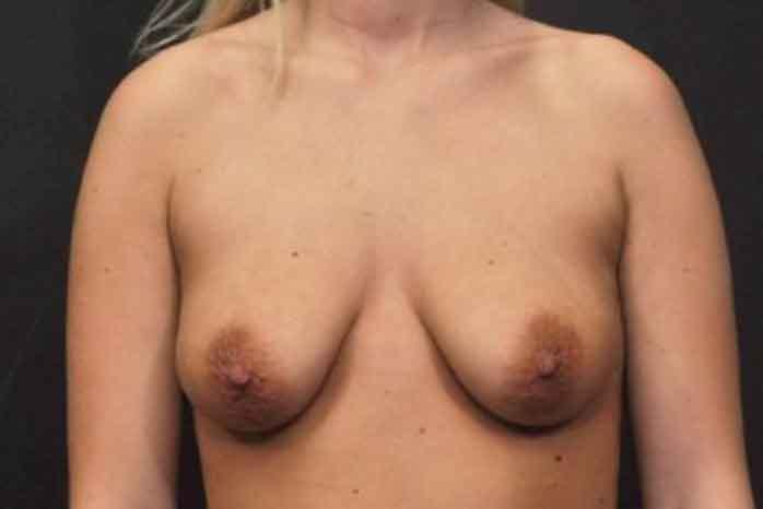 Case #1370 – Breast Lift