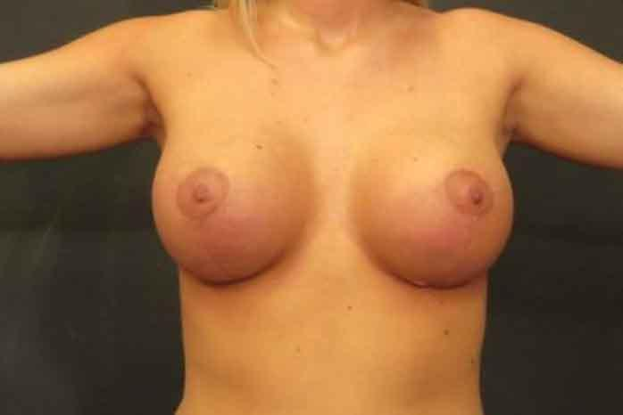 Case #1370 – Breast Augmentation