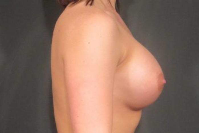Case #1382 – Breast Augmentation
