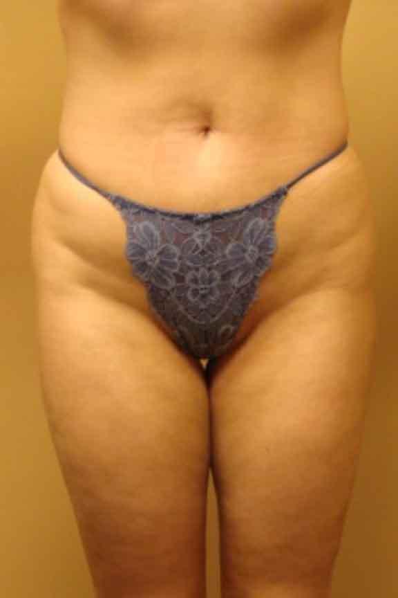 Case #138 – Brazilian Butt Lift