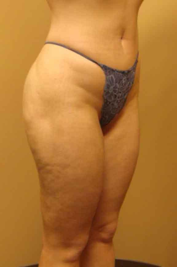 Case #138 – Liposuction