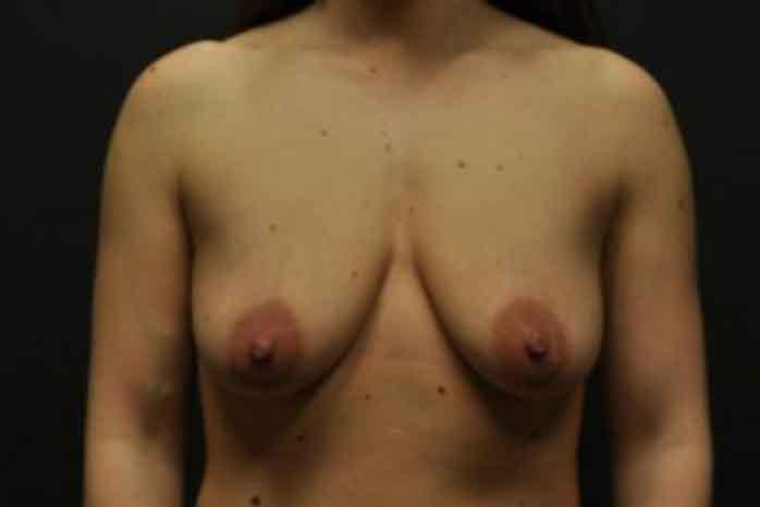 Case #1399 – Breast Lift