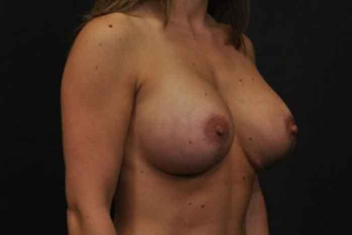 Case #1399 – Breast Augmentation