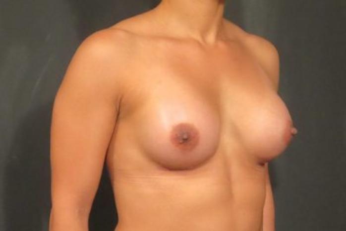 Case #1414 – Breast Augmentation