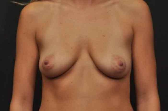 Case #1432 – Breast Augmentation