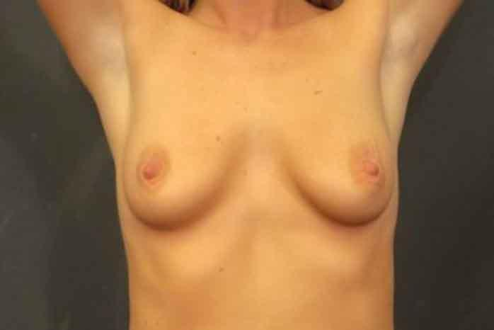 Case #1432 – Breast Lift