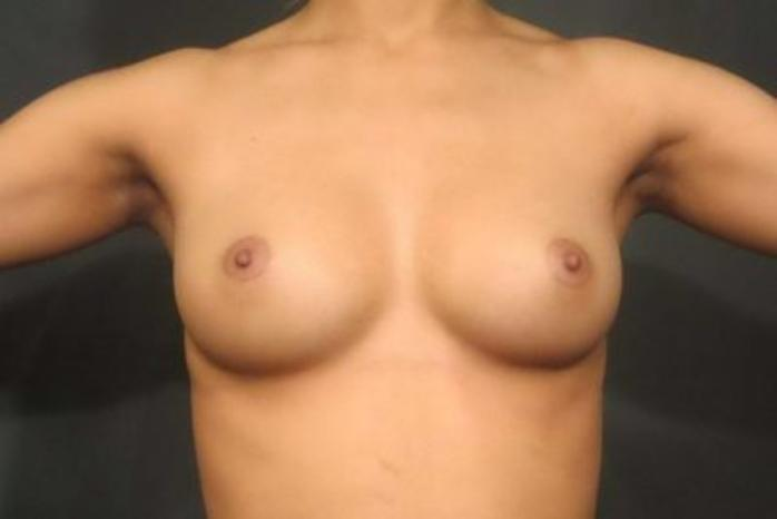 Case #1453 – Breast Augmentation