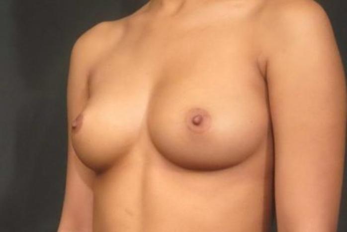 Case #1453 – Breast Augmentation