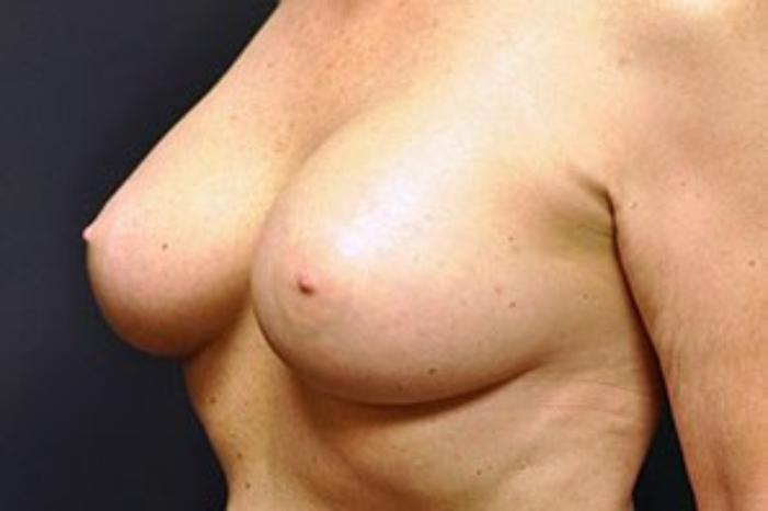Case #1483 – Breast Augmentation