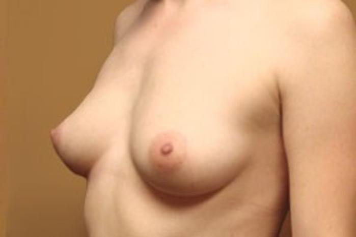 Case #1493 – Breast Augmentation