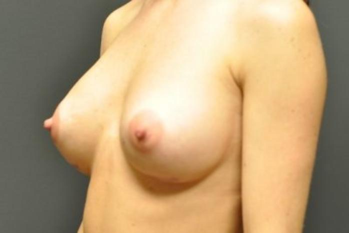 Case #1469 – Breast Augmentation