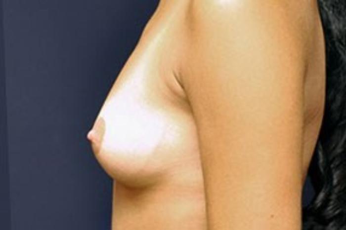 Case #1498 – Breast Augmentation