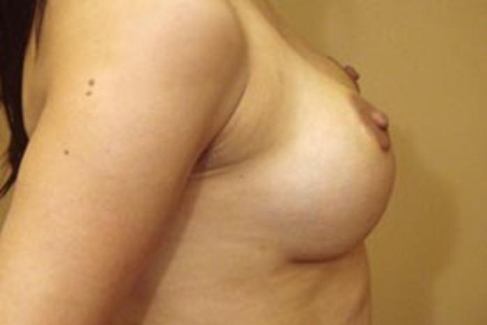 Case #1505 – Breast Augmentation