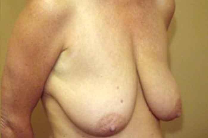 Case #1519 – Breast Augmentation