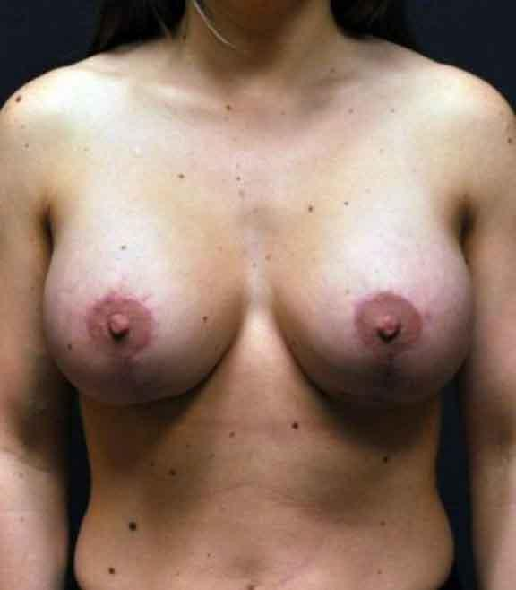 Case #1524 – Breast Augmentation
