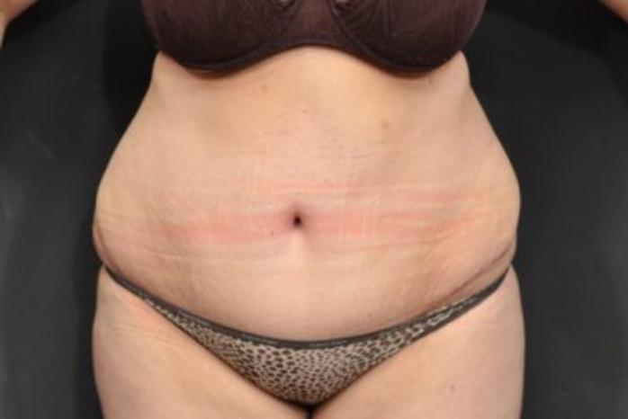 Case #152 – Tummy Tuck