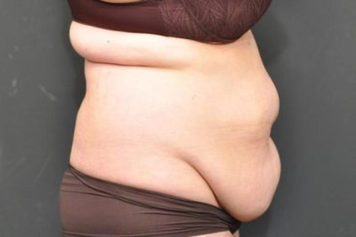 Case #152 – Liposuction