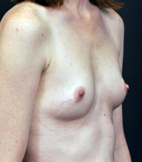 Case #1532 – Breast Augmentation