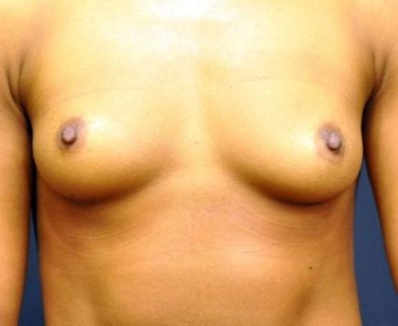 Case #1538 – Breast Augmentation
