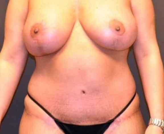 Case #1544 – Breast Augmentation