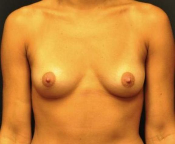 Case #1550 – Breast Augmentation