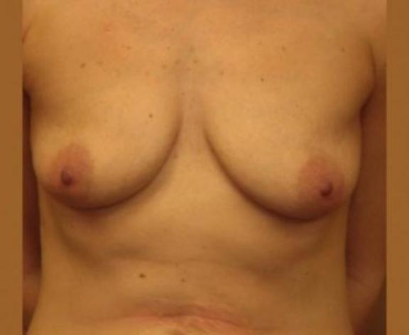 Case #1556 – Breast Augmentation