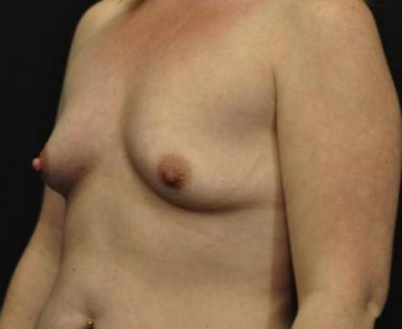 Case #1562 – Breast Augmentation