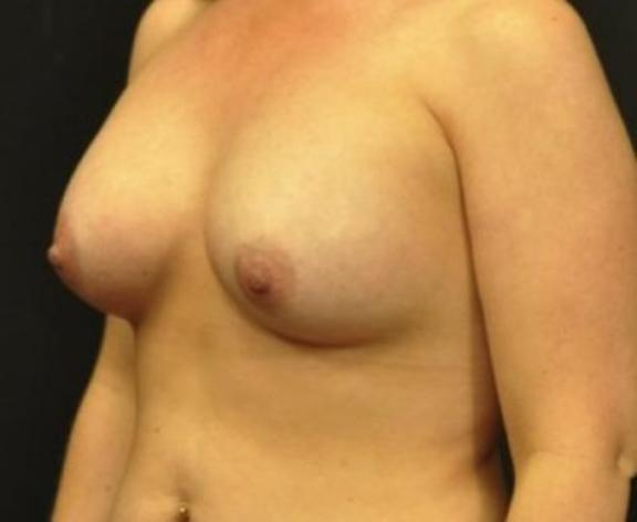 Case #1562 – Breast Augmentation
