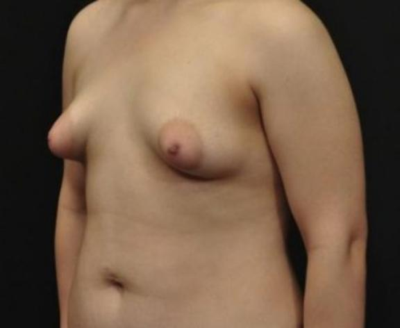 Case #1576 – Breast Augmentation