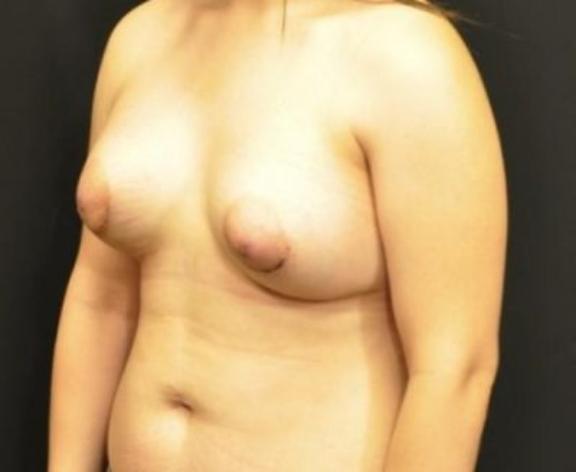 Case #1576 – Breast Augmentation