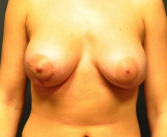 Case #1585 – Breast Augmentation