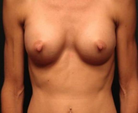 Case #1594 – Breast Augmentation