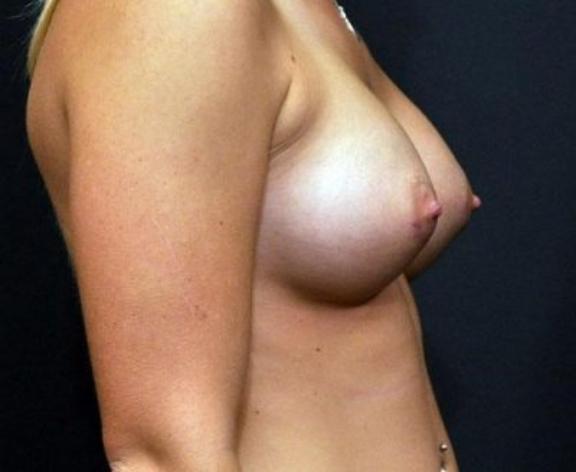 Case #1601 – Breast Augmentation