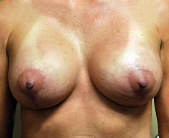 Case #1610 – Breast Augmentation
