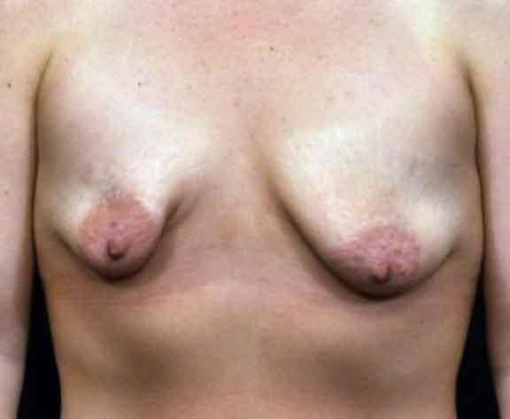 Case #1617 – Breast Augmentation