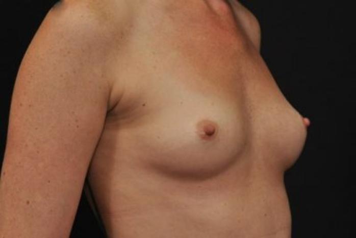 Case #1628 – Breast Augmentation