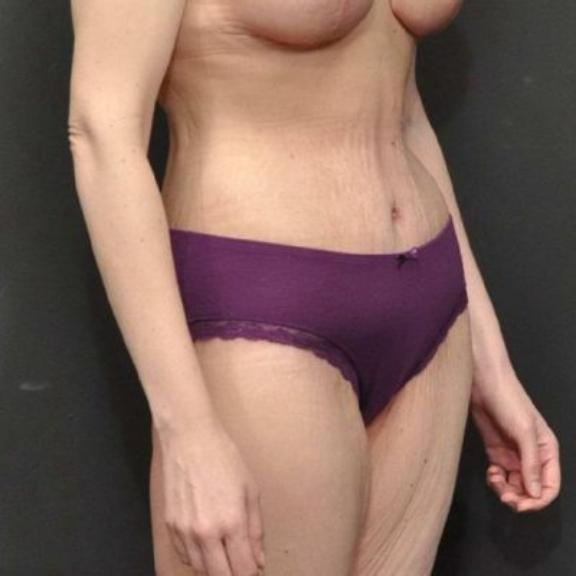 Case #162 – Liposuction