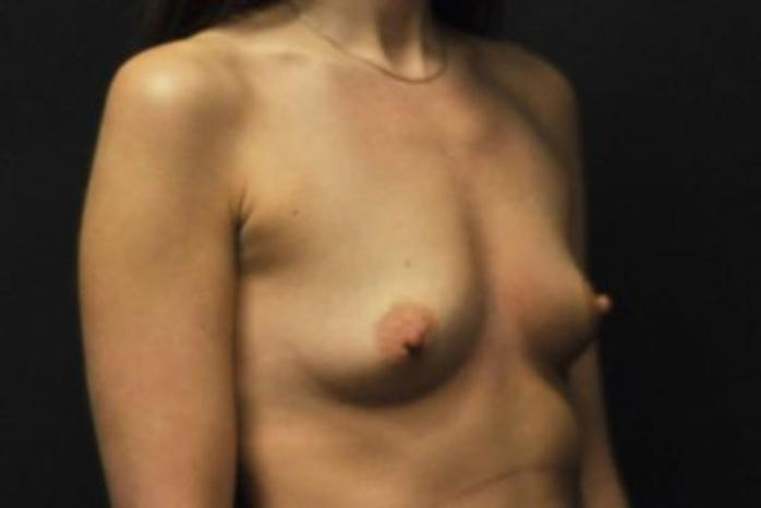 Case #1643 – Breast Augmentation